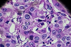 HCC Cells